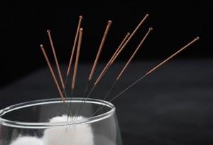 acupuncture 4